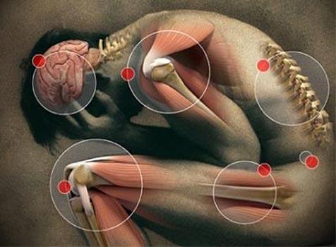 fibromialgia6