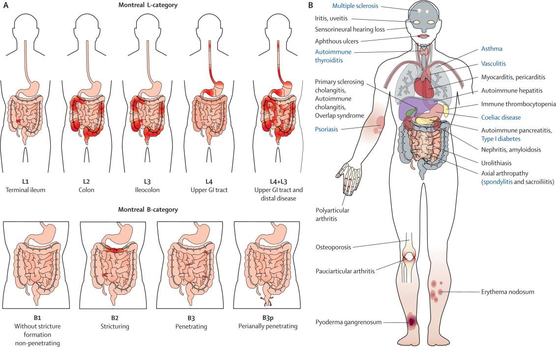 Choroba Leśniowskiego – Crohna, czy na pewno nieuleczalna?