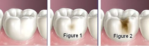 Co właściwie powoduje próchnicę zębów?